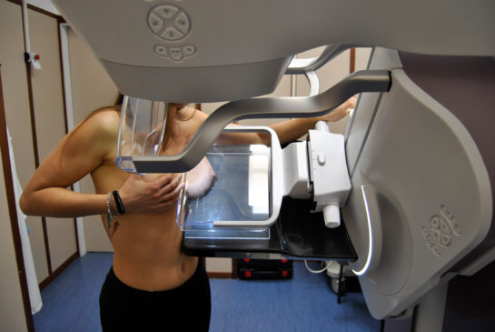 mammografia-digitale